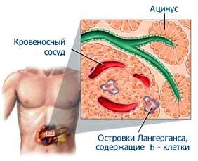 http://www.endocrinolog.ru/images/cms/data/diabet_07.jpg