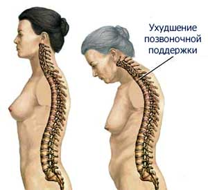 http://www.endocrinolog.ru/images/osteoporosis_02.jpg