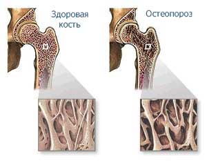 http://www.endocrinolog.ru/images/osteoporosis_03.jpg